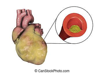 übergewichtige , atherosklerotisch, herz, abbildung, koronar, ader, platte