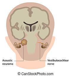 akustisch, eps10, neuroma