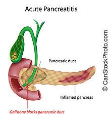 akut, pancreatitis