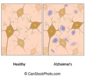 alzheimer, gehirn, gewebe, amyloid, w