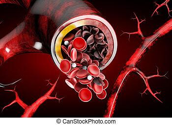 anämie, halbmond, normal, ausstellung, deformated, abbildung, sichelzelle, ader, 3d