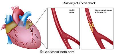 Anatomie des Herzinfarkts