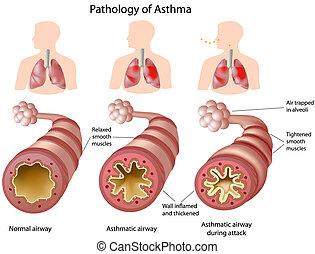 Anatomy des Asthmas.