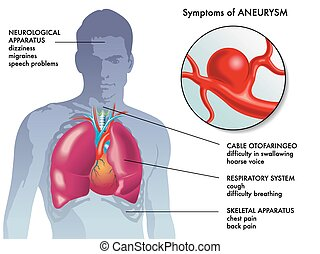 Aneurysma-Symptome.