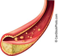 arterie, blockiert, cholesterin