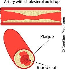 arterie, platte, cholesterin