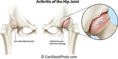 Arthritis des Hüftgelenks.