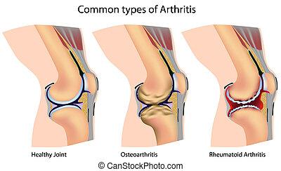 arthritis, gemeinsam, arten