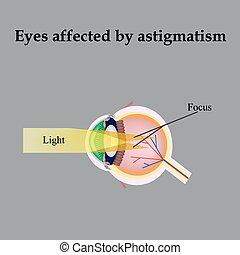 astigmatismus, beeinflussen, astigmatism., sicht hat verschlechtet