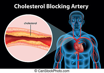 Ateriosklerose.