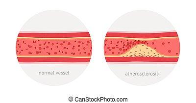 atherosklerose, gefäße