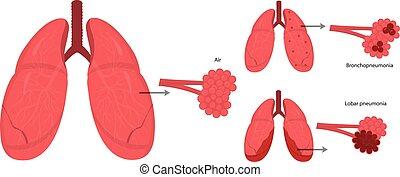 atmungssystem, krankheiten