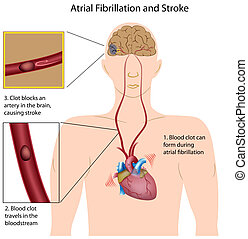 Atriale Fibrillation und Schlaganfall,eps8
