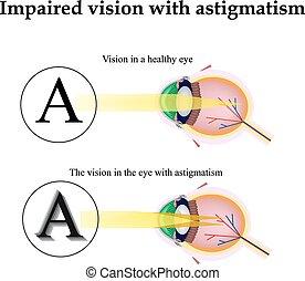 auge, astigmatism., sehen, buechse, gehindert, vision
