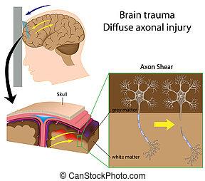 axon, gehirn, scheren, trauma, eps8