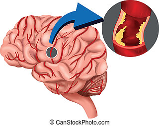 Blutklumpen-Konzept im Gehirn.