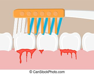 blutung, zahnfleisch, krankheit, periodontal
