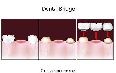 brücke, dental, verfahren