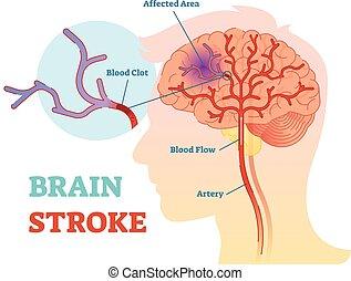 Brain Stroke anatomisches Vektordiagramm, Schema.