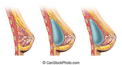 brust, section., implantat, kreuz, frau