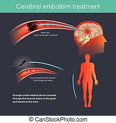 Cerebrale Emboliebehandlung.