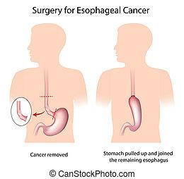 chirurgie, esophageal, krebs