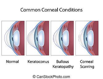 corneal, krankheit, eps8, gemeinsam