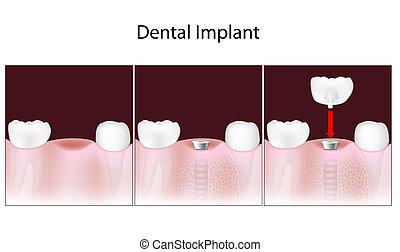 dental, verfahren, eps10, implantat
