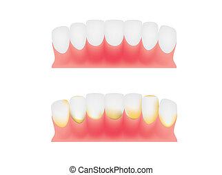 dental, zahnfleisch, platte, z�hne