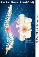 Diagramm des gezwickten Nervens beim Rückenmark.