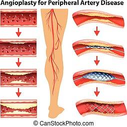 Diagramm mit Angioplastik für Peripherieerkrankungen.