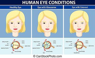 Diagramm mit menschlichen Augen.