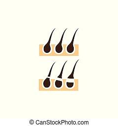 Diagramm mit verschiedenen Methoden der Haarentfernung
