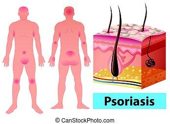 diagramm, psoriasis, ausstellung, menschliche
