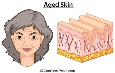Diagramm zeigt Frauen mit alter Haut.