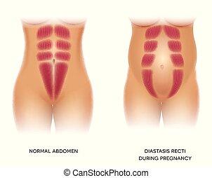 Diastasis rektive oder abdominale Trennung
