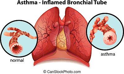 Eine asthmainflamierte Bronchialröhre.