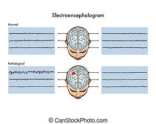 Elektroenzephalogramm.