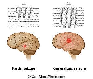 epilepsie, teilweise, generalized