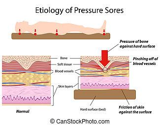 Etiologie der Druckwunden, Eps8