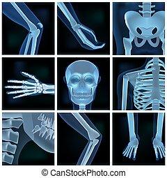 fotos, zubehörteil, collage, viele, röntgenbilder, mann