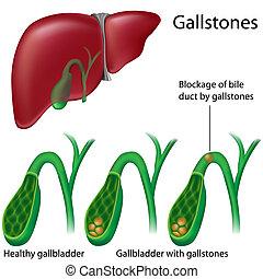 gallensteine