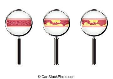 gefäße, vektor, abbildung, blut, atherosklerose