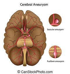 Gehirnaneurysma, eps10
