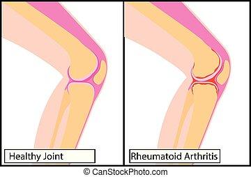 Gesundes Kniegelenk und Rheumatoide Arthritis medizinische Vektorgrafik.