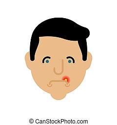 Herpes auf Lippenmann. Kalt im Mund, männlich