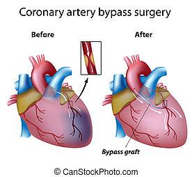 Herz Bypass Operation, Eps8