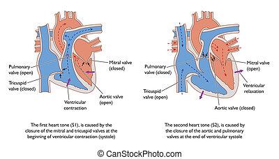 Herzgeräusche