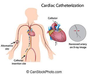 Herzkatheterisierung, eps10