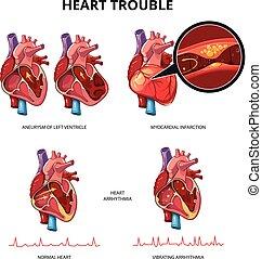 Herzkrankheiten-Vektorinfografien